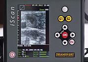 Estreno 2012 nuevo ecógrafo con sonda lineal – iScan